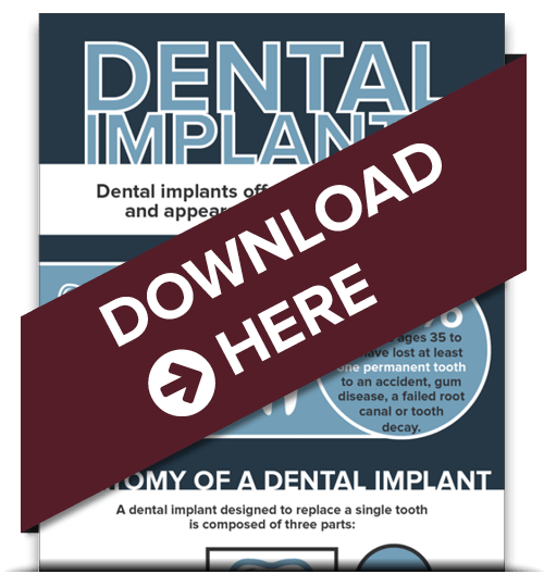 Homepage preview of our free Dental Implants infographic download from your dentist in Hemet, CA