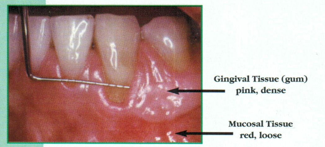A closeup shot showing the effects of gum disease