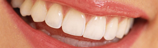 A smile that has been beautified with cosmetic dentistry