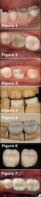 Adhesive Esthetic Dentistry