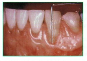 Clode up of a gum line experiencing periodontal disease
