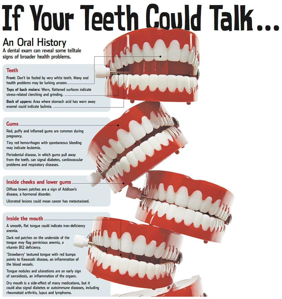 An infographic about your teeth.