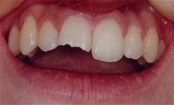 Closeup of a chipped tooth